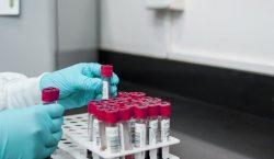 ZDRAVSTVENI NADSTANDARD U MOKOŠICI – Nastavlja se usluga vađenje krvi